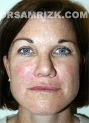 photo Female patient after Facelift