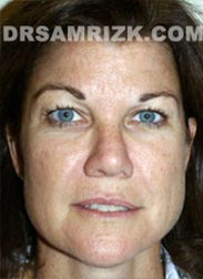 Female before Facelift - picture