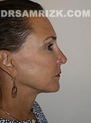 photo female after Facelift procedure - side view