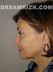 image Female before Facelift