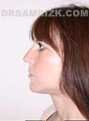 Female after Facelift and Necklift