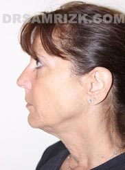 Female before Facelift and Necklift