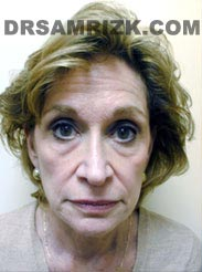 pic Female patient before Facelift