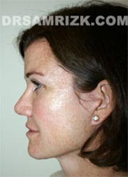 pic Female patient after Facelift procedure