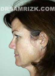 Female patient before Facelift procedure - picture