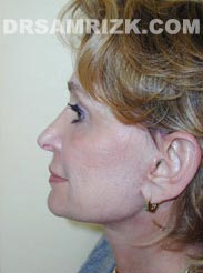 pic Female patient after Facelift