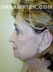 picture Female patient before Facelift
