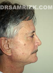 picture Male patient after Facelift