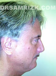photo Male patient before Facelift