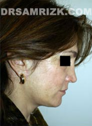 Female patient after Necklift procedure - photo