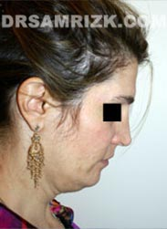 Female patient before Necklift procedure - image