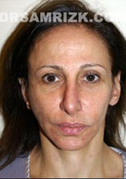 Female patient after Facelift procedure - pic