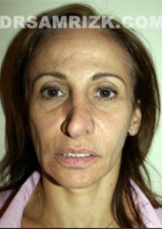 Female patient before Facelift - pic