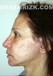Female patient after Facelift - image