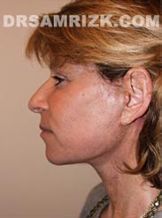 photo Female after Facelift procedure