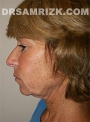 Female patient before Facelift procedure