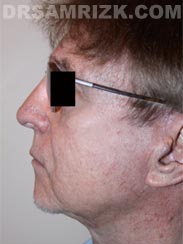 Male Facelift after picture