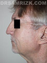 Male Facelift before picture