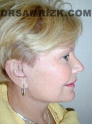 image Female after Facelift procedure
