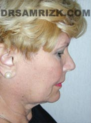 NYC Facelift procedure Female before pic
