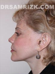 pic Female after Facelift procedure
