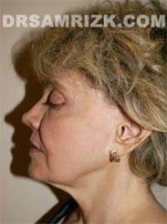 Female before Facelift procedure - pic