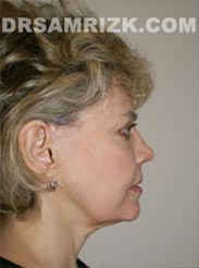 photo patient before Facelift procedure