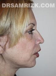 after Facelift procedure women image