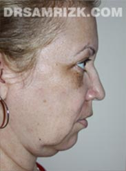 before Facelift procedure women image