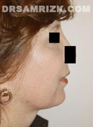 picture Female patient after Facelift procedure