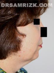 picture Female patient before Facelift procedure
