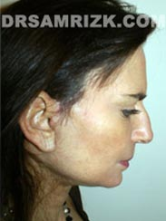 Female patient after Facial Rejuvenation