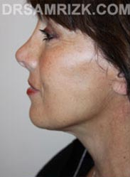 Female after Facelift procedure - side pic
