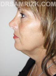 Female before Facelift procedure - side pic