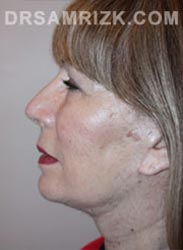 Female Postoperative Facelift procedure - side view