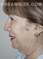 Female Preoperative Facelift procedure - side view
