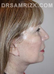 Female patient after lower Facelift procedure - pic