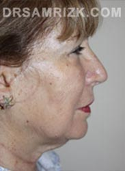 Female patient before lower Facelift procedure - pic