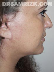 Female patient after Facelift procedure - photo