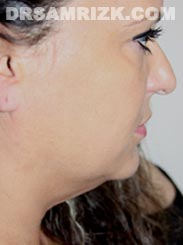Female patient before Facelift procedure - photo