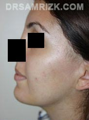 Female patient Post-Op Facelift procedure - photo