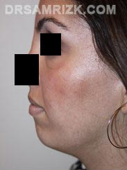 Female patient Pre-Op Facelift procedure - photo