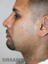 Male patient Post-Op Facelift procedure - side photo