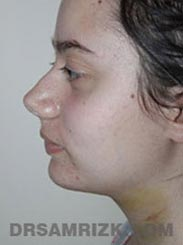 Female patient Facelift procedure Postoperative pic