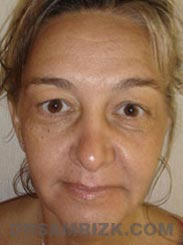 Female patient Facelift procedure Preoperative pic