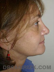 pic Female Postoperative Facelift