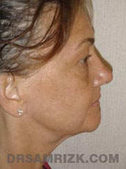 picture Female Pre-Op Facelift