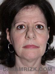 picture Female Preoperative Facelift