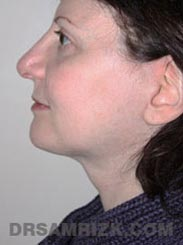 Female patient Post-Op Facelift procedure - side view