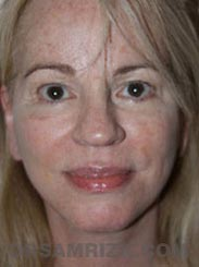 Female after Facelift procedure - photo